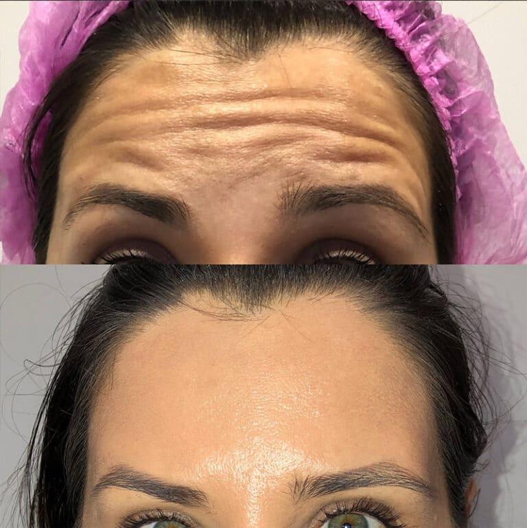 "Toxina Botulínica ""Botox"" na testa"
